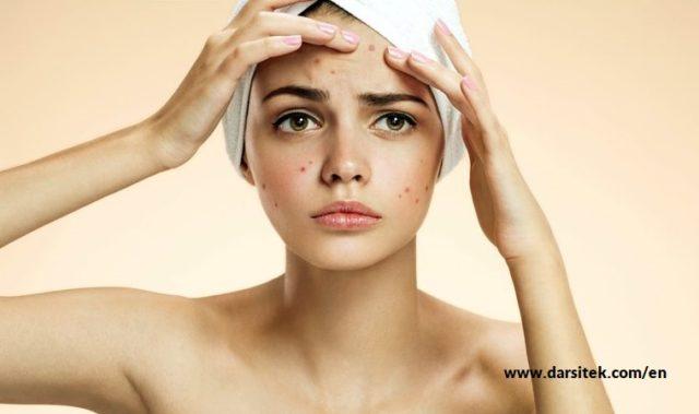 relieve acne